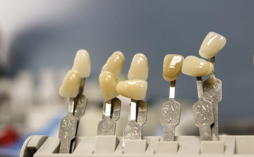 Prześliczne urodziwe zęby również olśniewający przepiękny uśmieszek to powód do płenego uśmiechu.
