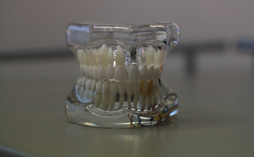 Złe postępowanie odżywiania się to większe niedostatki w zębach oraz także ich zgubę